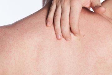 Tessuti danneggiano pelle